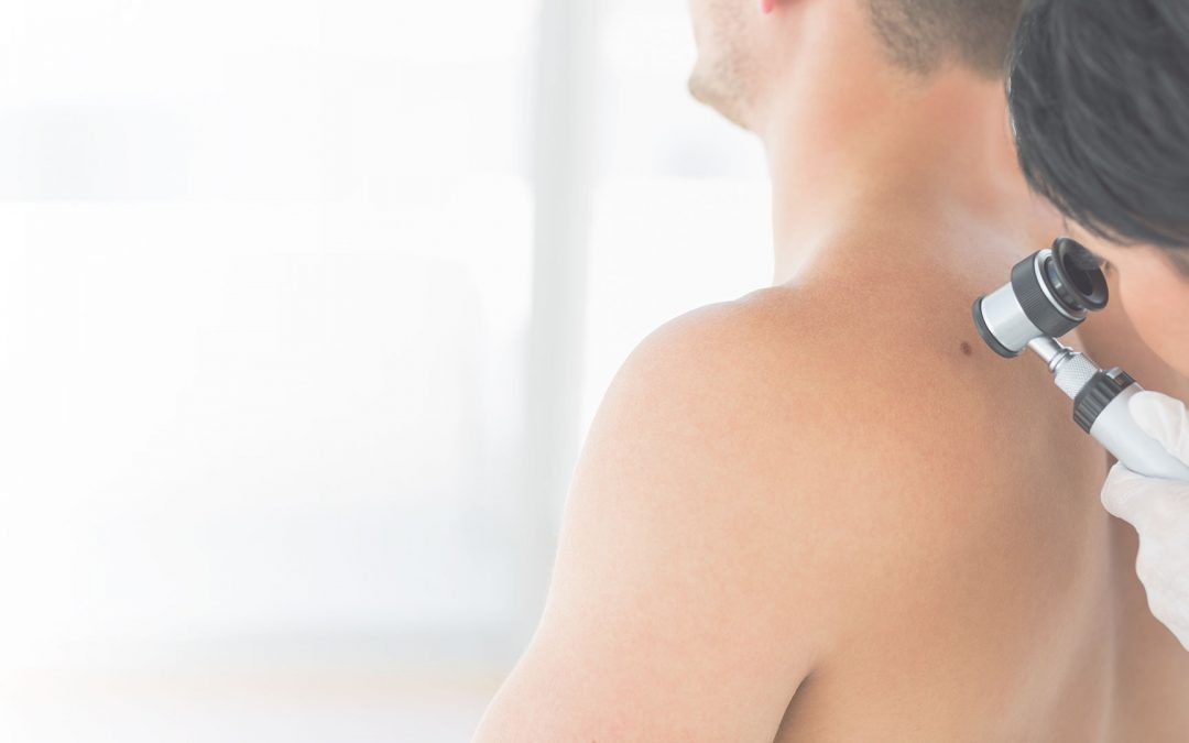 A man receiving a Mohs skin cancer check on her back at Millburn Laser Center located in Millburn New Jersey