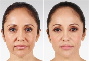 wrinkle smoother botox