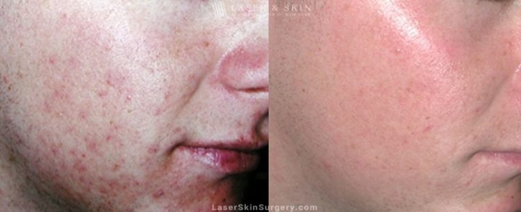 before and after image of a laser treatment for acne scars on a young mans face