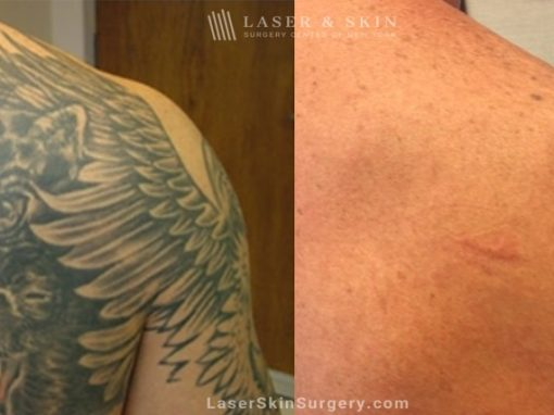 Lasers used to remove tattoo from patient's shoulder