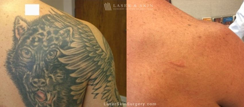 before and after laser treatment for tattoo removal on the upper back