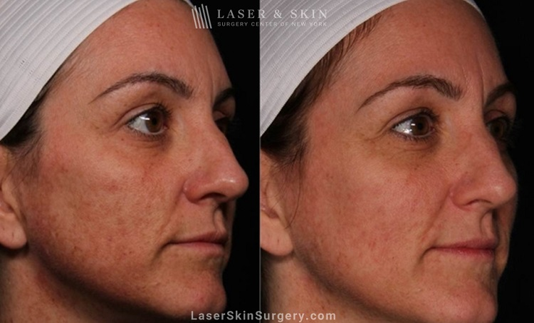 before and after image of a laser treatment for unwanted skin pigmentation also known as melasma on a woman's face
