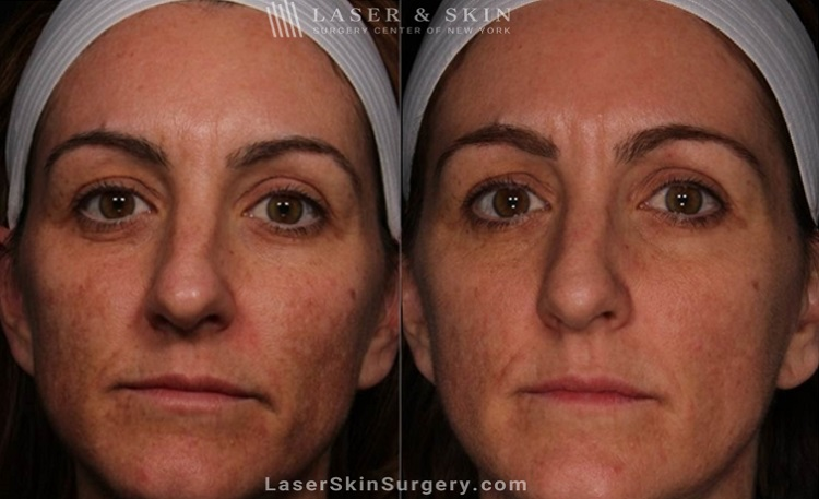 Clear + Brilliant Permea | Laser Skin Resurfacing | New York, NY