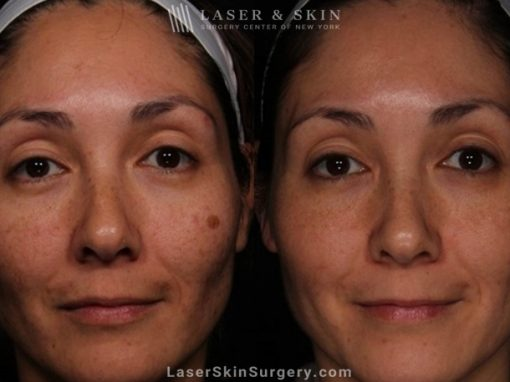 Laser Treatment for Melasma on the Face
