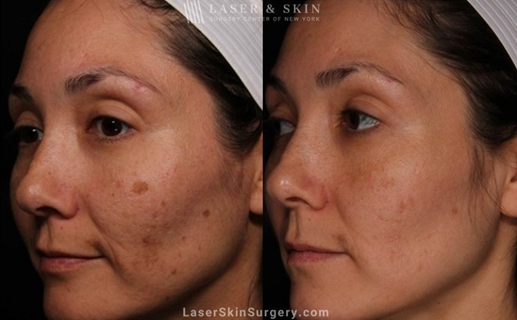 Laser treatment to reduce brown spots from melasma