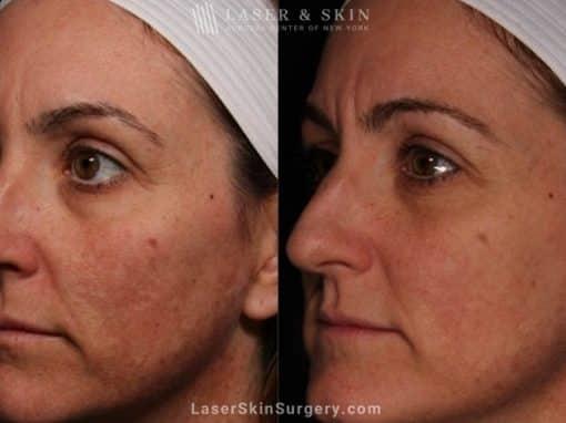 Laser Treatment for Melasma on the Face