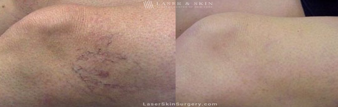 before and after image of a Sclerotherapy Injections for the Treatment of Leg Veins
