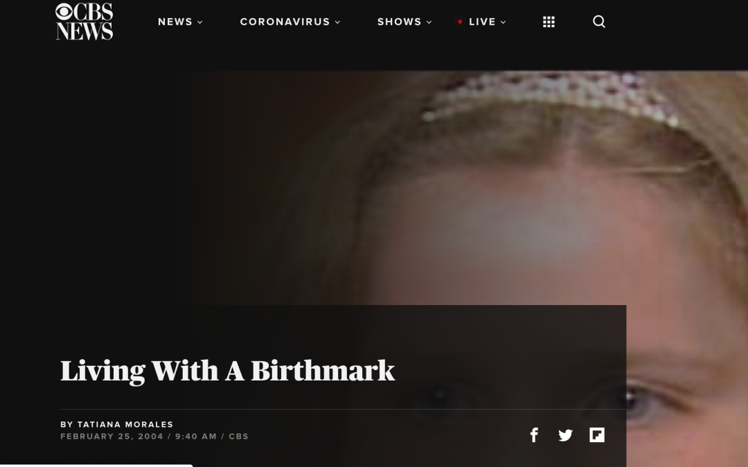 article about birthmark treatment in new york