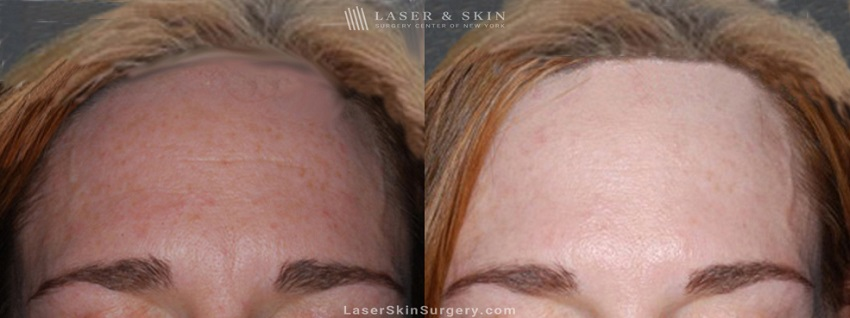 before and after image of a botox injection in a woman's forehead to reduce the appearance of wrinkles
