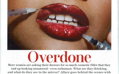 Roy G. Geronemus, M.D., discusses fillers and the importance of keeping a natural look in Allure Magazine