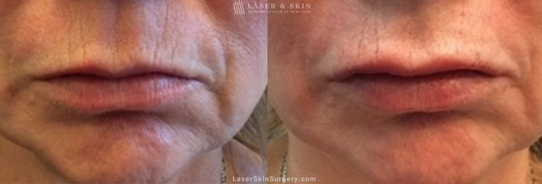 image of a before and after filler treatment to plump a woman's lips