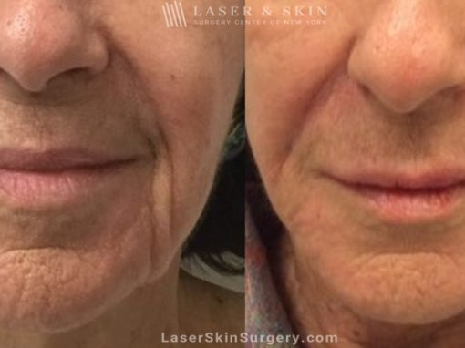 Filler Injections to Add Volume Around the Mouth Area