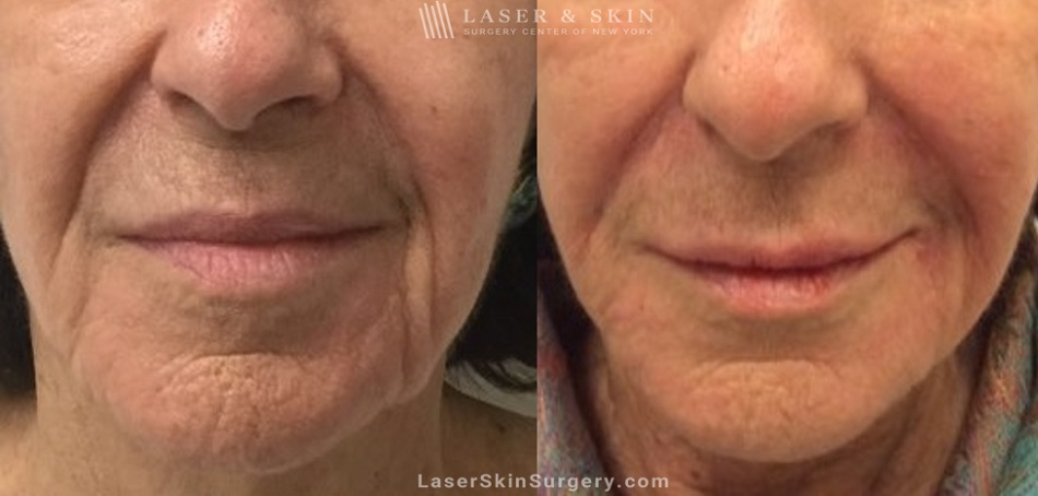 image of a before and after filler treatment to soften the appearance of lines around the mouth area of a woman