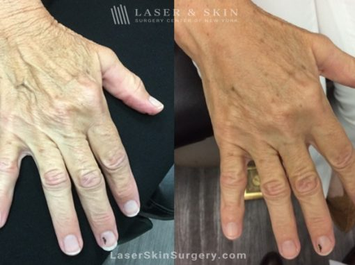 Filler Injections to Soften the Appearance of Aging Hands