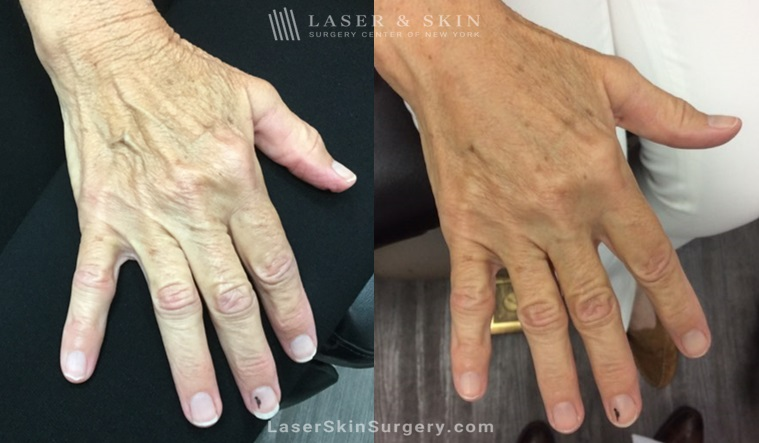 image of a before and after filler treatment to soften the appearance of aging hands