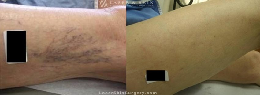 before and after image of a Sclerotherapy injections for the treatment of spider veins on the legs