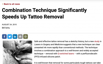 Combination Technique Significantly Speeds Up Tattoo Removal