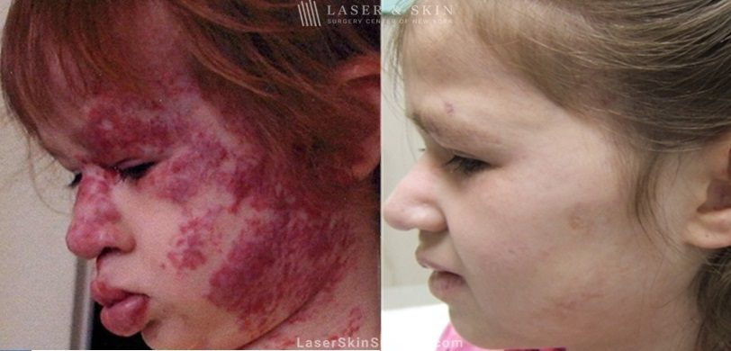 before and after image of a Laser treatment to remove a facial birthmark on a little girl