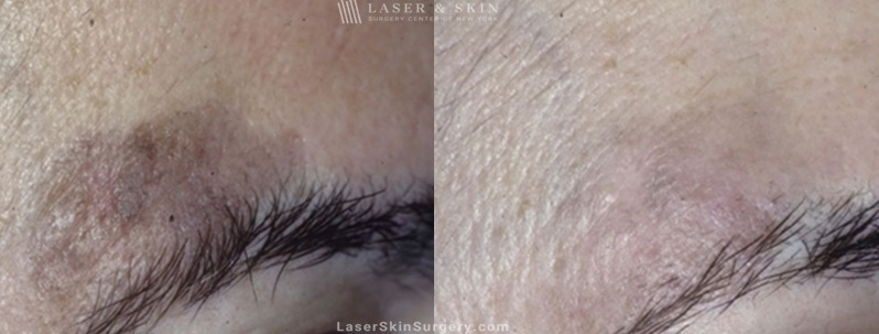 Laser Treatment for Brown Spots and Sun Damage Above the Eye