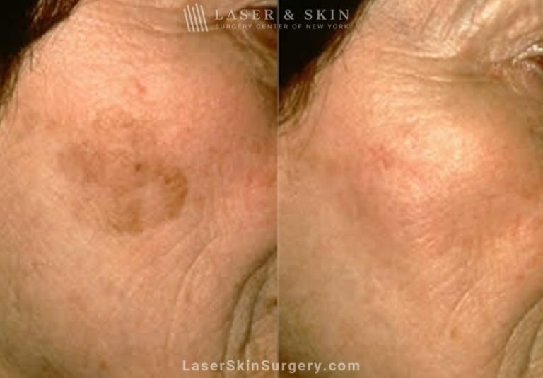 Laser Treatment to remove large brown spot on patient's cheek