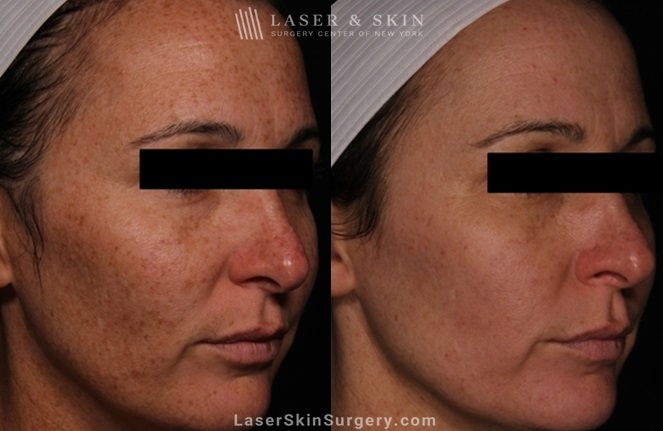 before and after image of a laser treatment for the removal of brown spots on a woman's cheeks