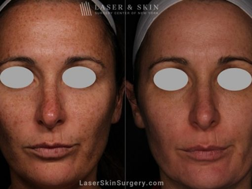 Laser Treatment for Brown Spots and Sun Damage on the Face
