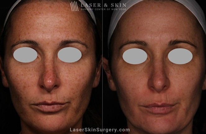 before and after image of a laser treatment for the removal of brown spots on a woman's face