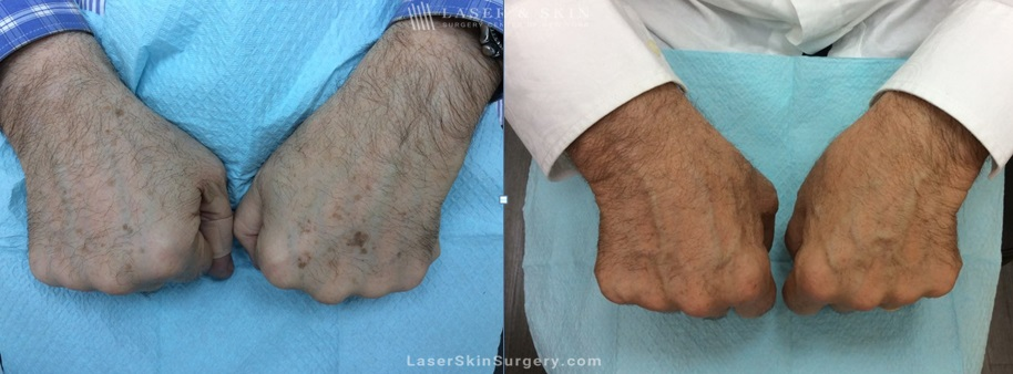 before and after image of a laser treatment for the removal of brown spots and or sun damage on a man's hands