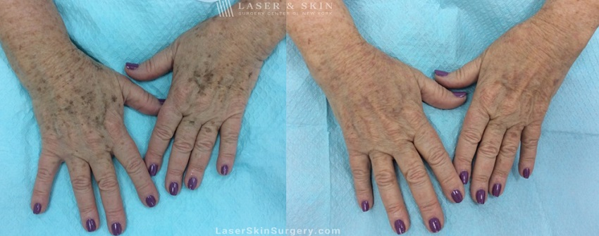 Laser to remove brown spots and treat other sun damage on patient's hands