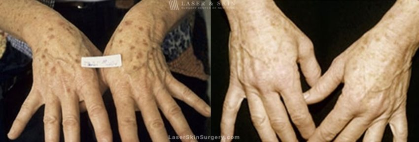 Laser Treatment for Sun Damage on the Hands