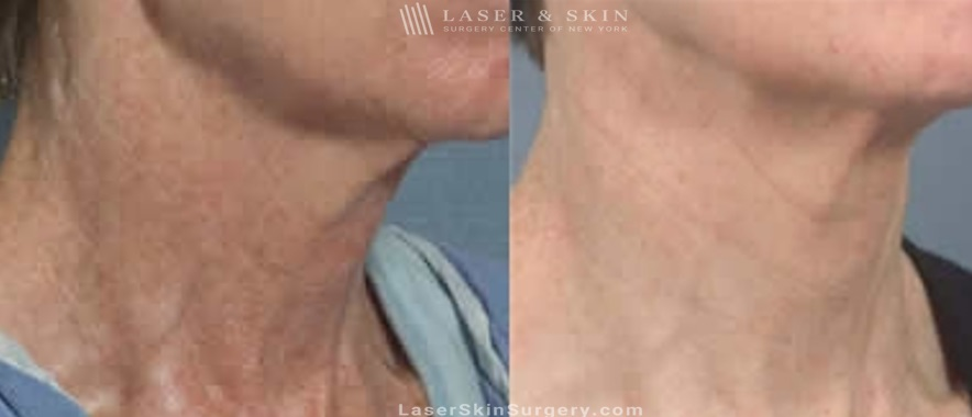 before and after image of a laser treatment for the removal of brown spots and sun damage on a woman's neck