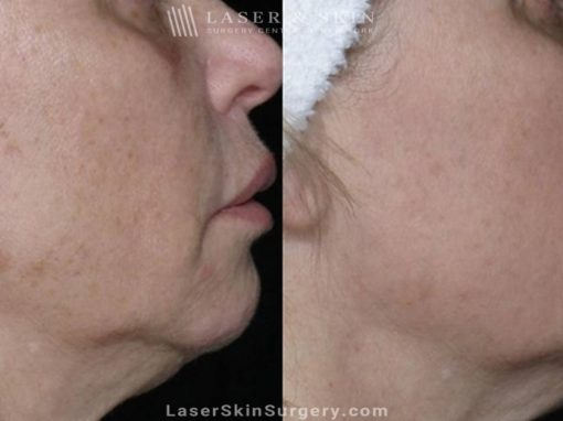 Laser Treatment for Brown Spots on the Cheeks