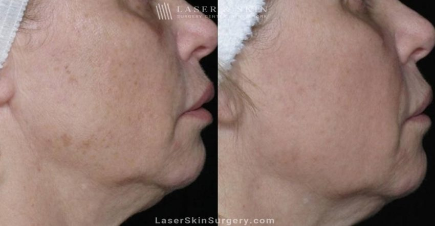 before and after image of a laser treatment for the removal of sun damage on a woman's cheeks