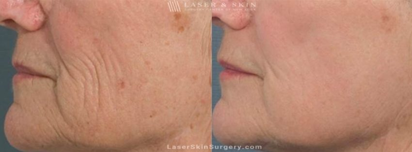 Laser Treatment for Brown Spots and Wrinkles