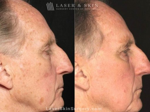 Laser Treatment for Actinic Keratosis on a Man's Face