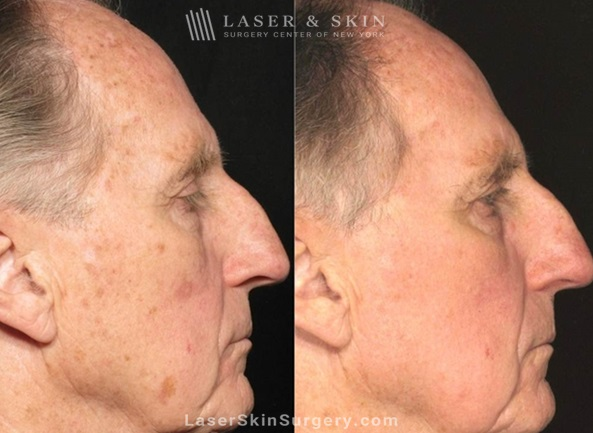 before and after image of a laser treatment for the removal of brown spots on a man's face