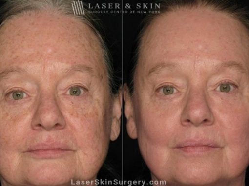 Laser Treatment for Actinic Keratosis on Female Patient