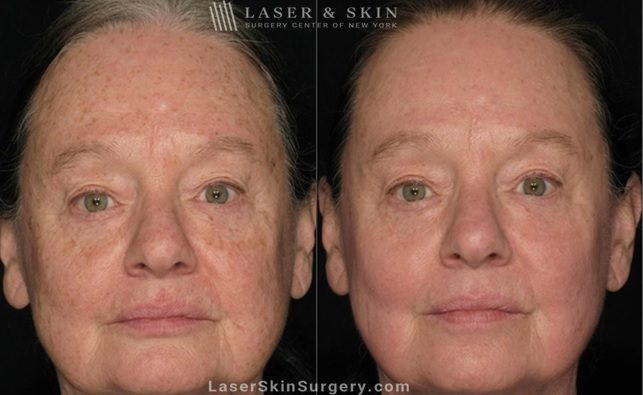 before and after image of a laser treatment to remove brown spots and sun damage on a woman's face