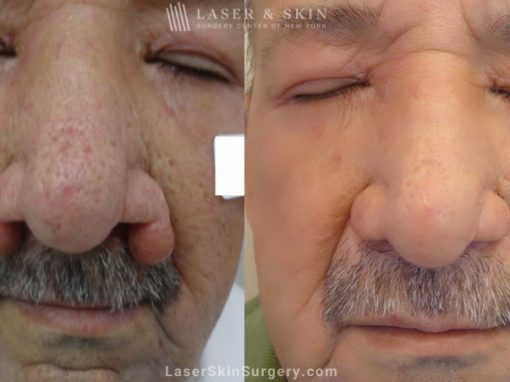 Laser Treatment for Rhinophyma on a Man's Nose