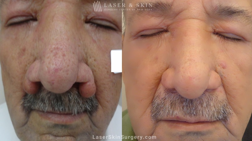 before and after image of a laser treatment for Rhinophyma on a mans nose