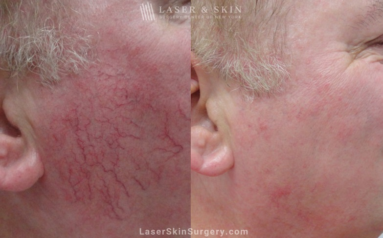 before and after image of a laser treatment for broken blood vessels on the side of a man's face