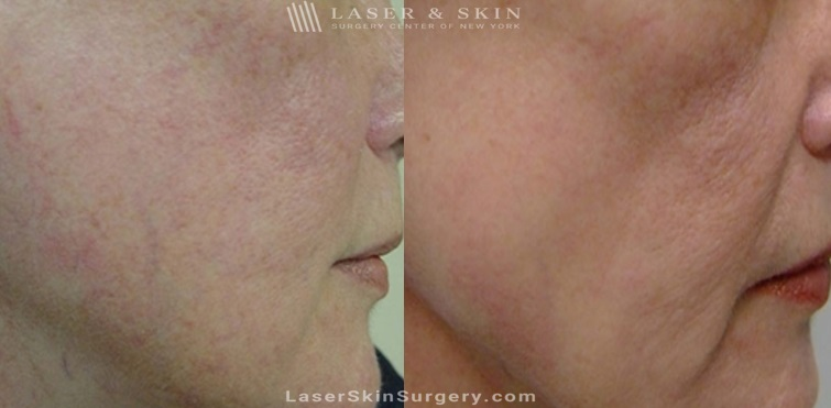 Laser Treatment for Broken or Enlarged Blood Vessels on the Cheek