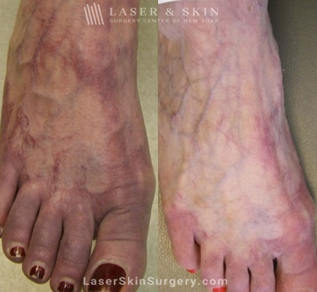 Laser Treatment for Broken or Enlarged Blood Vessels on the Foot