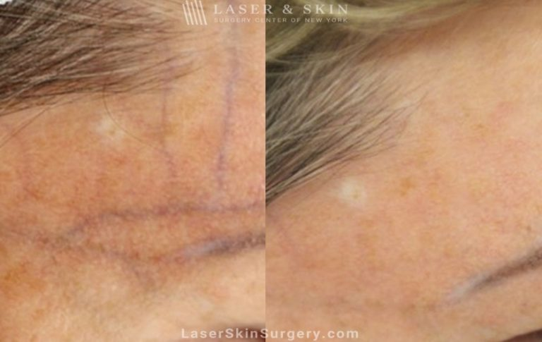 Vascular laser to treat broken or enlarged blood vessels on the forehead