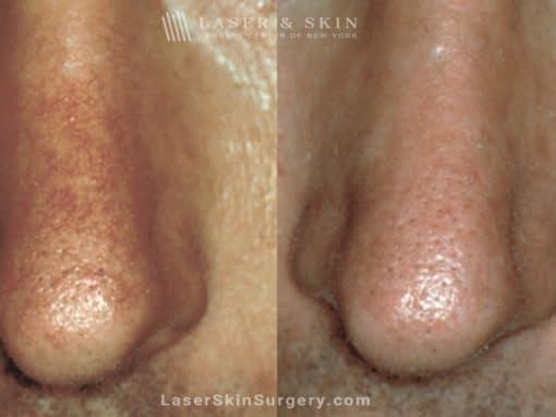 Laser Treatment for Broken or Enlarged Blood Vessels on a Man's Nose