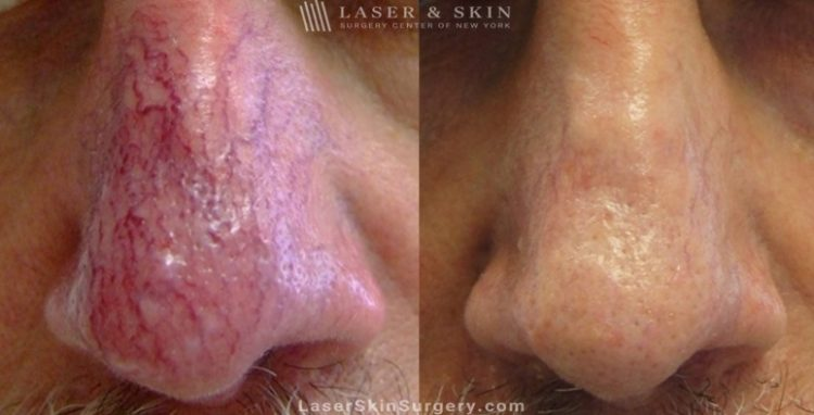 before and after image of a laser treatment for Broken or enlarged blood vessels on a man's nose