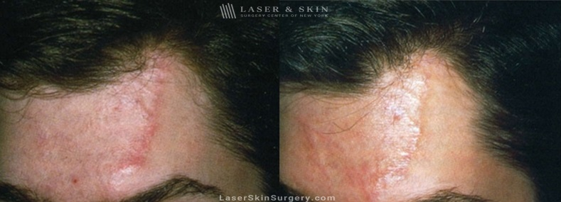 image of a before and after for laser treatment to remove a scar on a man's forehead