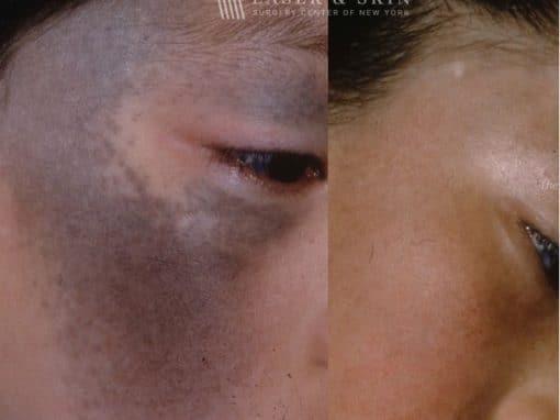 Laser Treatment for Nevus of Ota Around the Eye