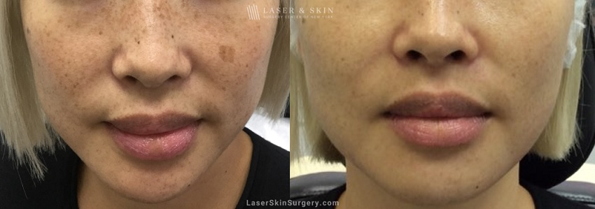 before and after image of a laser treatment to remove facial sun damage