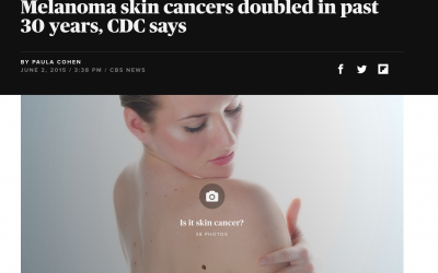 Melanoma skin cancers doubled in past 30 years – CBS News